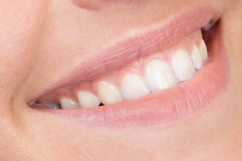 porcelain-crowns-490x326 Cosmetic Dentistry