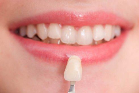 veneers-490x326 Cosmetic Dentistry
